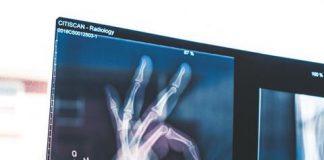 rentgen - smieszne zdjecie rendgenowski